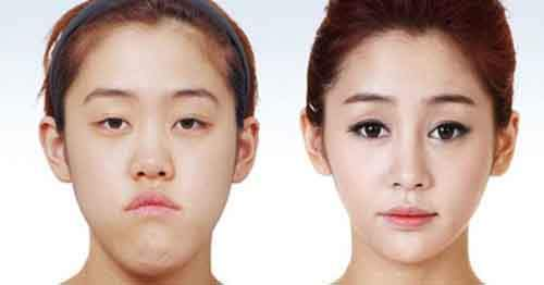 Before-And-After-Of-South-Korean-Cosmetic-Surgery-1