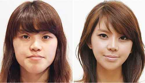 Before-And-After-Of-South-Korean-Cosmetic-Surgery-10