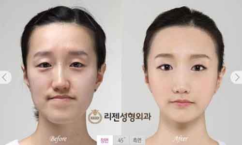 Before-And-After-Of-South-Korean-Cosmetic-Surgery-11