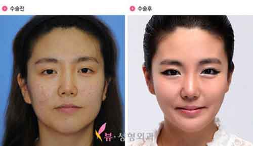 Before-And-After-Of-South-Korean-Cosmetic-Surgery-12