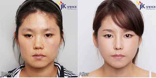 Before-And-After-Of-South-Korean-Cosmetic-Surgery-2