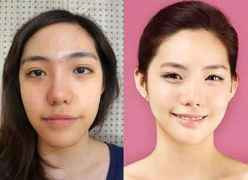 Before-And-After-Of-South-Korean-Cosmetic-Surgery-3
