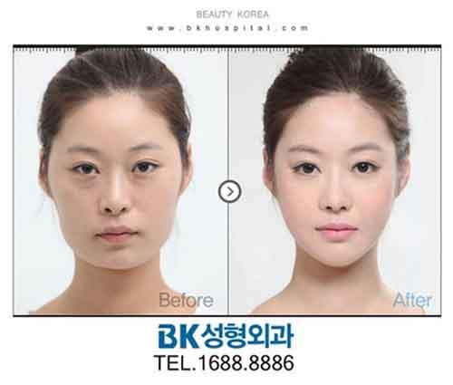 Before-And-After-Of-South-Korean-Cosmetic-Surgery-4