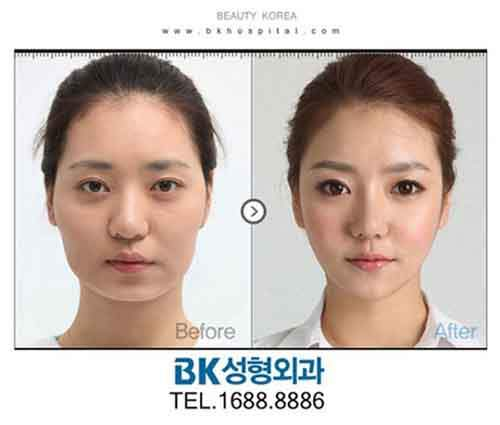 Before-And-After-Of-South-Korean-Cosmetic-Surgery-6