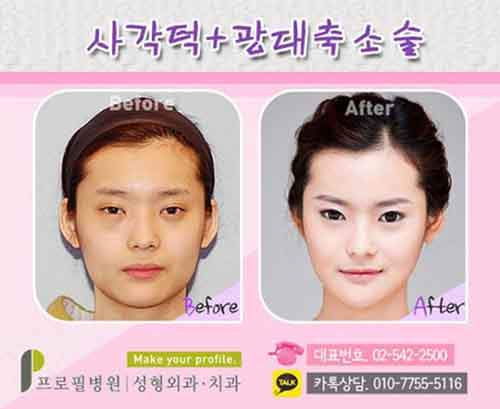 Before-And-After-Of-South-Korean-Cosmetic-Surgery-7