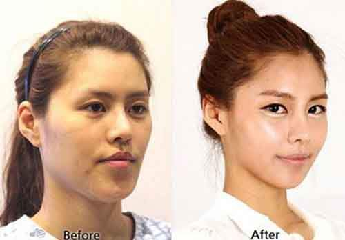Before-And-After-Of-South-Korean-Cosmetic-Surgery-8