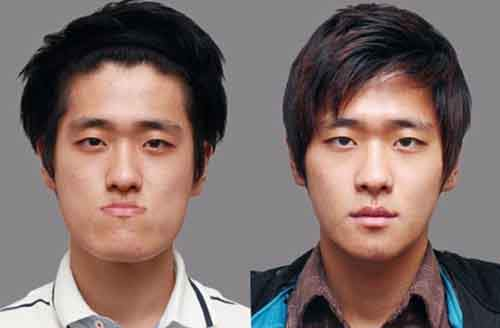 Before-And-After-Of-South-Korean-Cosmetic-Surgery-9