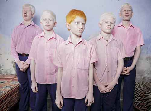 at-the-vivekananda-mission-school-in-west-bengal-india-a-group-of-blind-albino-boys-stand-for-a-portrait-the-school-is-one-of-the-few-schools-for-the-blind-in-india