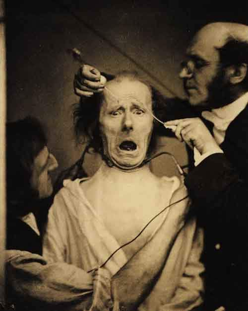 1862.-Neurologist-Duchenne-de-Boulogne-electrocuting-a-mans-face-in-order-to-study-facial-muscles.-France.-1862bb
