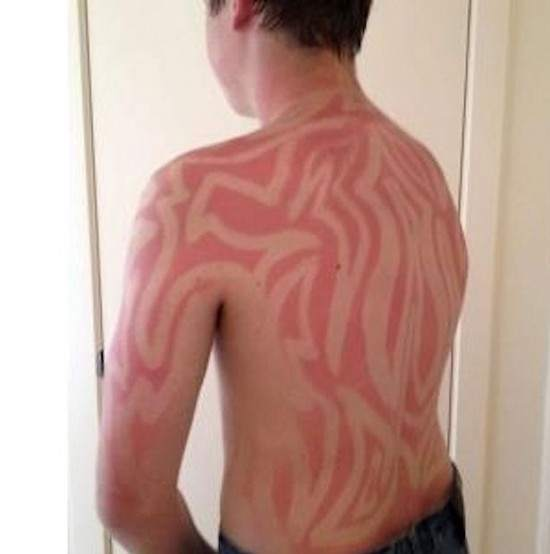Sunburn-art2-550x554