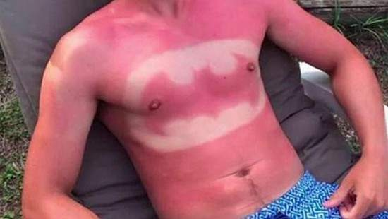 sunburn-art-550x310