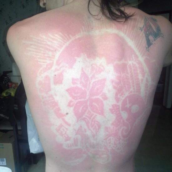 sunburn-art6-550x550