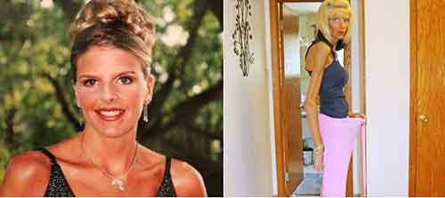 ex-model-lisa-brown-starving-to-death-due-to-rare-disease-1