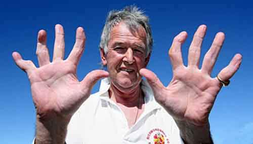 Hands of wicket keeper David Morrison after 45 years of playing Cricket.