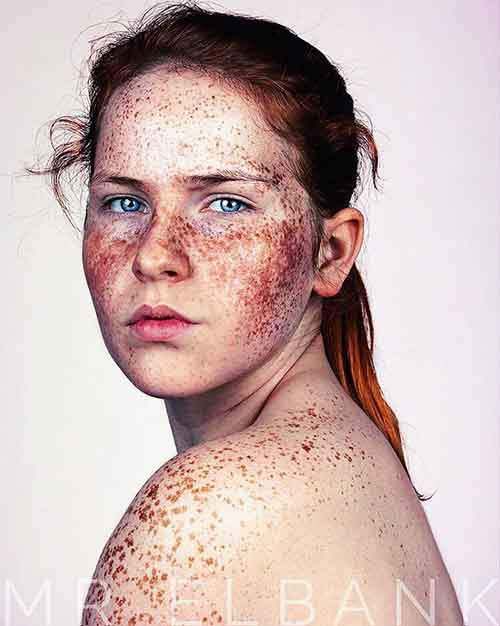 freckles-portrait-photography-brock-elbank-102__700