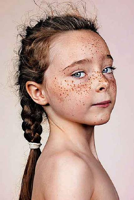 freckles-portrait-photography-brock-elbank-127__700