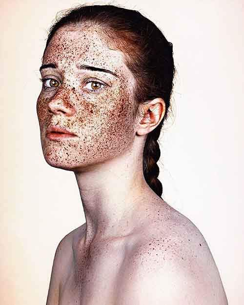 freckles-portrait-photography-brock-elbank-136__700