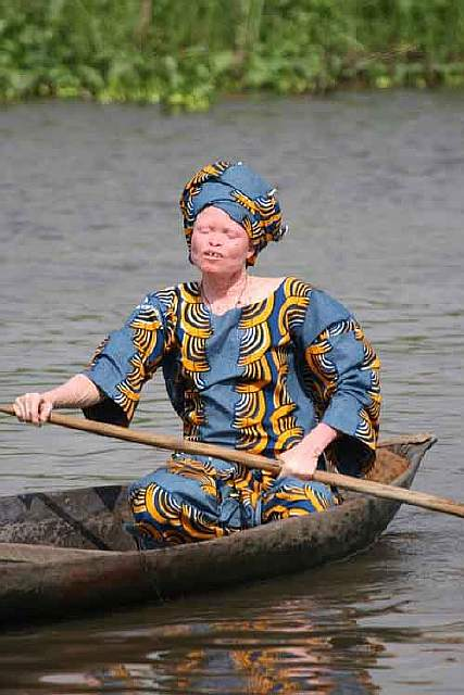 Albino_woman_in_canoe_Benin-610x915