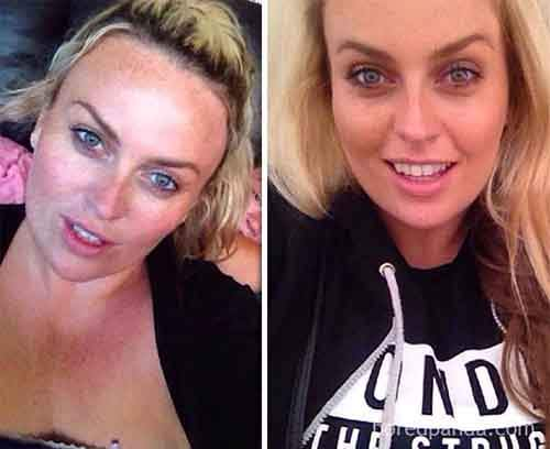 before-after-sobriety-photos-69