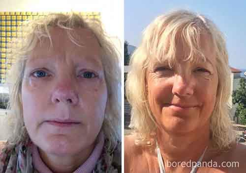 before-after-sobriety-photos-76